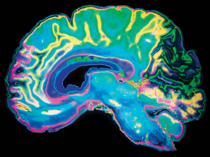 Colorful image of a brain